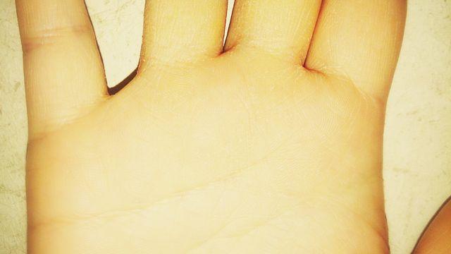 手汗の悩み